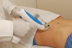 la mesoterapia para eliminar la grasa del abdomen
