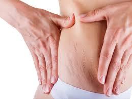 celulitis-abdomen