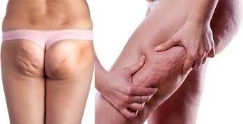 cura-de-la-celulitis